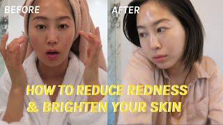 How To Reduce Redness & Brighten Your Skin