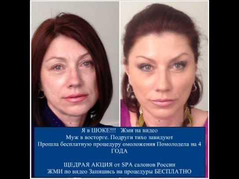 До и после Лазерный Доктор СПб