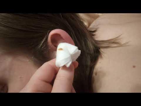 Как убрать пробку в ухе перекисью водорода