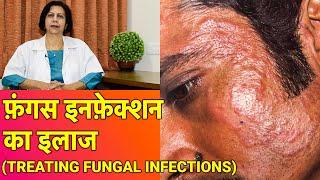 फ़ंगस इनफ़ेक्शन का इलाज || Treating Fungal Infection (In HINDI) || Dr. Vijay Laxmi Singh