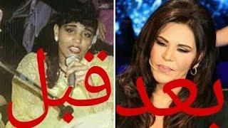 فضائح الفنانات قبل وبعد عمليات التجميل ومشاهير العرب 2018
