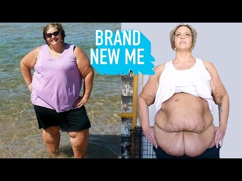 I Lost 188lbs – Now I'm Losing My Excess Skin   BRAND NEW ME