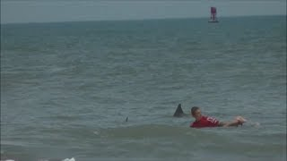 13 Year Old Boy Bitten by Bull Shark During Surf Contest