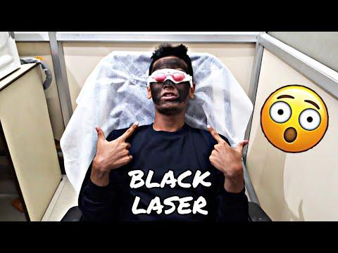 BLACK LASER Treatment    Instant Glowing Skin ☻
