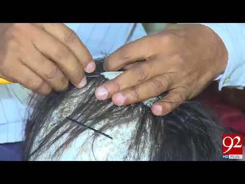 Hair wig available for bald head in Faisalabad - 20 September 2017 - 92NewsHDPlus