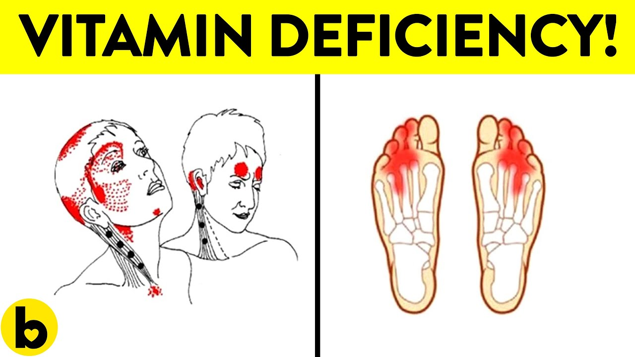 Vitamin B12 Deficiency Symptoms That Should Never Be ...