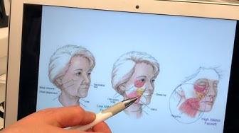 Kirurginen kasvojenkohotusleikkaus