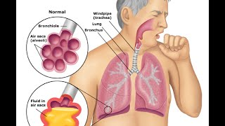 Bacterial Pneumonia: Symptoms & Treatment