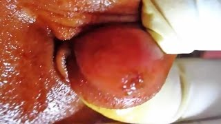 Popping Ear Cysts, Keloid Treatment and Abscess Drainage!