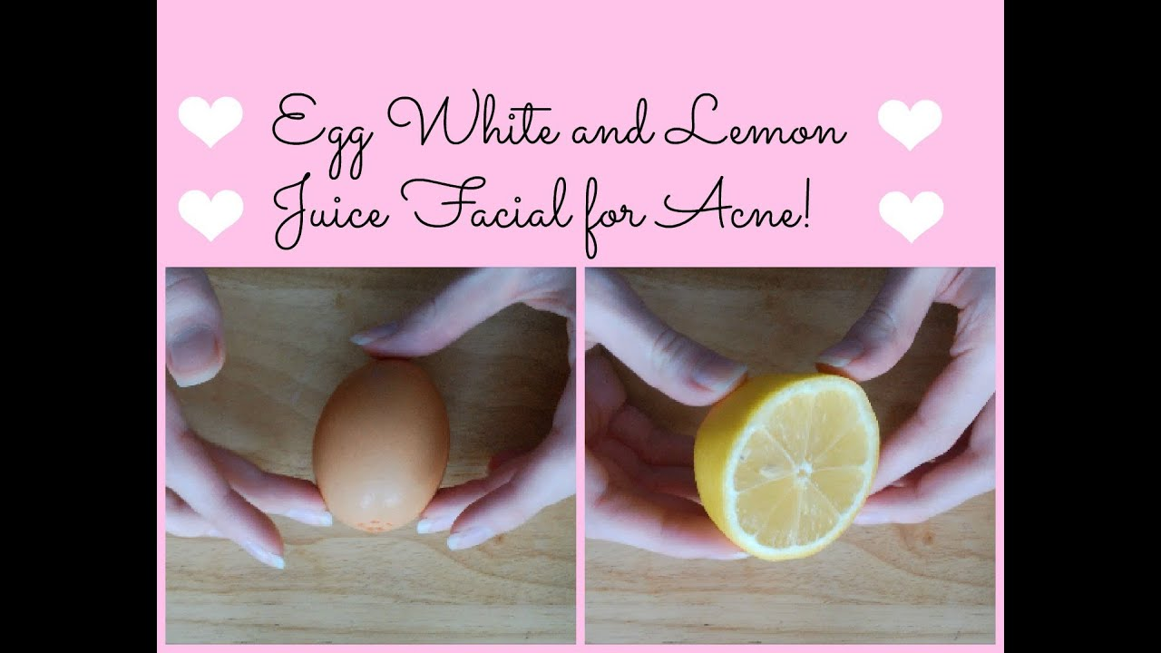 Egg White And Lemon Juice Facial For Acne! How To Clear Acne Naturally ™�