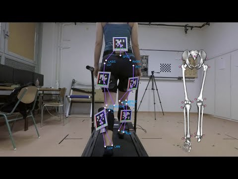 Affordable gait analysis using augmented reality markers