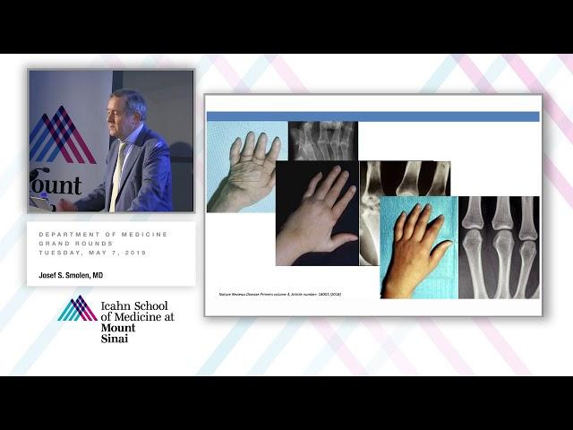 What Clinical Trials Do Not Teach Us: How to Achieve Remission in Rheumatoid Arthritis