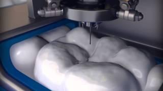 Способ особо точной обработки зубов и портативная установка .