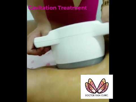 หัว Cavitation กระชับสัดส่วน Doctor Yada Clinic พัทยา
