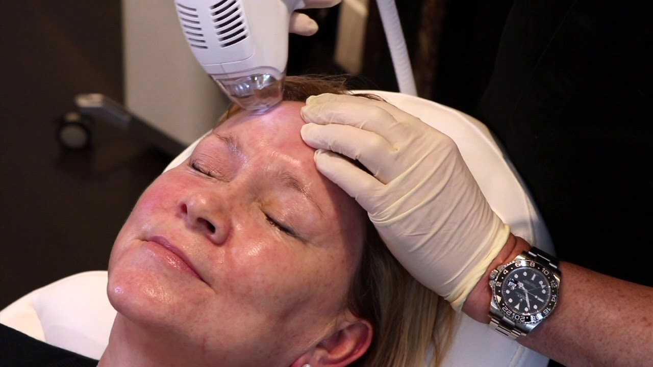 Download Kirsty - Tixel treatment with Dr Ian Strawford