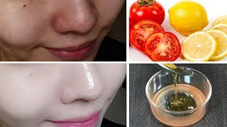 Whiten Your Skin Permanently with Lemon Tomato Facial Mask(100% Result)