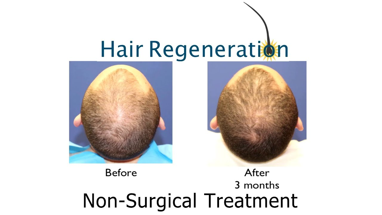 Consider, how to reverse thinning hair men