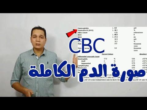 Cbc ازاى تقرا تحليل صورة الدم الكاملة Youtube
