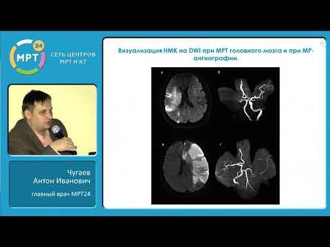 МРТ-диагностика заболеваний нервной системы — преимущества диагностических программ