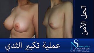 عملية تكبير الثدي بالحشوة السيلكونية الآمنة , الدكتور نورس صافي دمشق سوريا سورية بروتيز الصدر