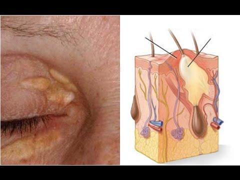 แชร์เรื่องดีดี 5 วิธีกำจัดตุ่มคอเลสเตอรอลรอบดวงตา(Get Rid of Cholesterol Deposits Around Your Eyes)