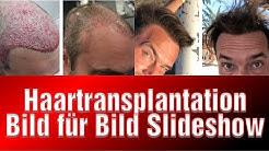 Haartransplantation Türkei Doku Zeitraffer Vorher Nachher 2 Jahre Sildeshow McClane