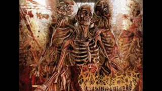 Fleshrot - Purging Impurity