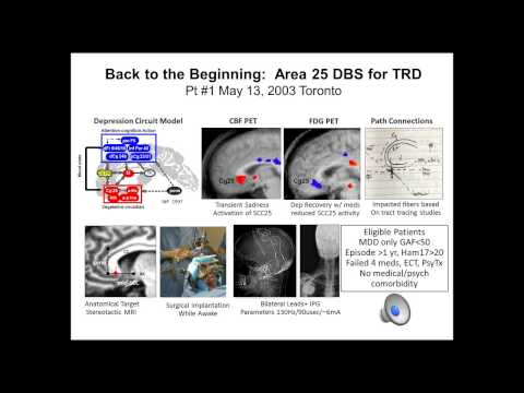 Deep Brain Stimulation & Depression: A Decade of Progress with Helen S. Mayberg, M.D.
