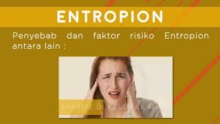TRIBUN-VIDEO.COM - Entropion merupakan kondisi kelopak mata yang tumbuh ke arah dalam. Pertumbuhan t.