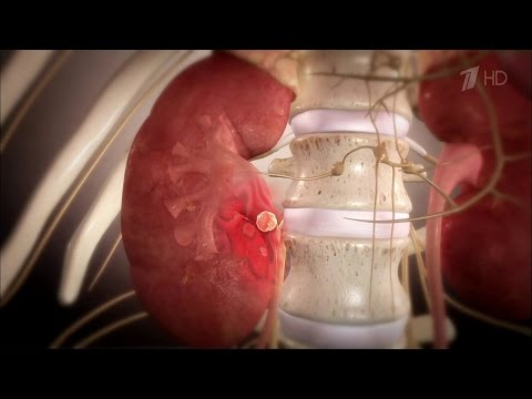 Здоровье. Вопросы о боли в спине. Камни в почках.(17.04.2016)