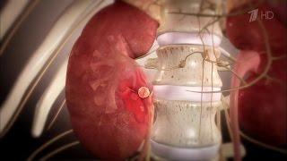 видео Признаки заболевания почек: Обследования и диагностика почек