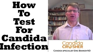 How To Test For Candida Yeast Infection
