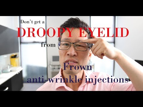 How to avoid a droopy eyelid after frown anti-wrinkle injections