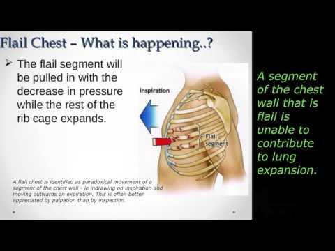 Blunt Chest Trauma - EMS Lecture 10/15
