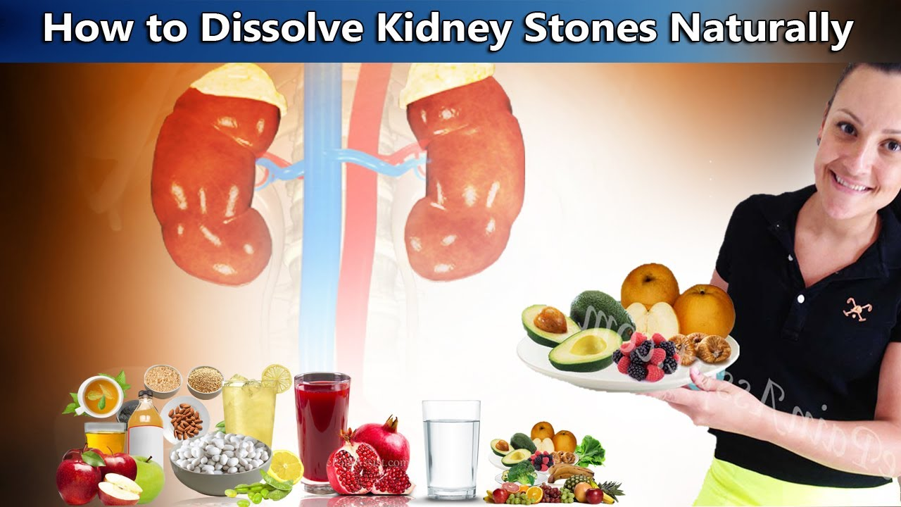 Dissolve Kidney Stones Naturally With These 8 Home Remedies Youtube