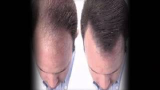 Regrow lost Hair|Hair Loss and Balding Treatment Revealed!