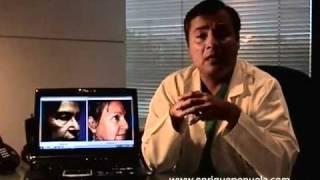Dr. Jorge Enrique Peñuela - Cuidados Frontoplastia