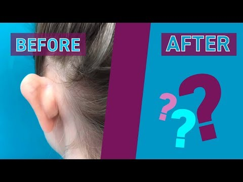 💉 Отопластика | Пластическая операция | Операция на уши 💉