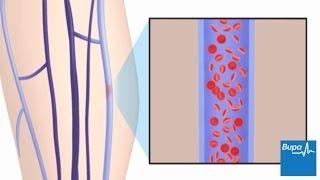 visszérszöveti gyulladás nincsenek visszérgyulladások és a petesejtek megduzzadnak