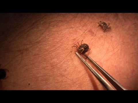 Tick attachment and removal (video by B. Drees and P. Teel)