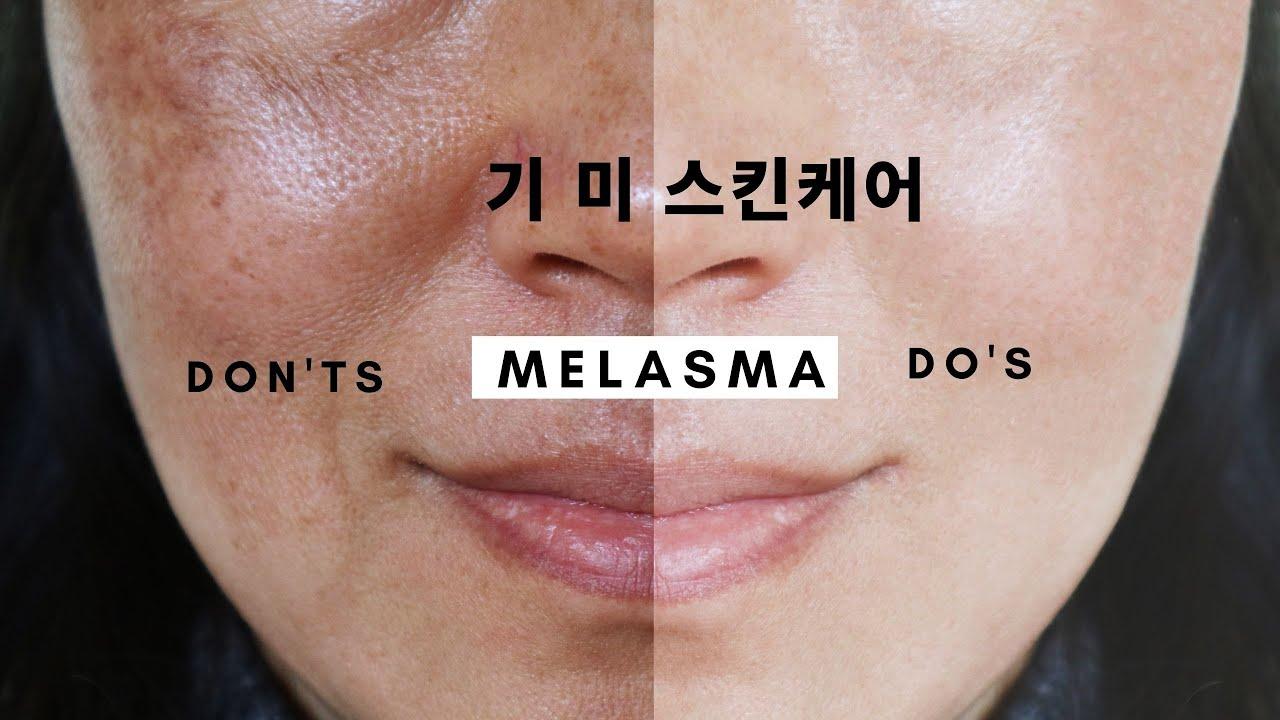 피부과의사가 알려주는 기미 피부관리법 & 미백 스킨케어 ㅣ 기미 잡티 색소침착 없애는법ㅣ피부좋아지는법 ㅣ 피부과전문의 닥터주디 ㅣ Korean Skincare