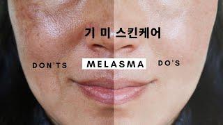 피부과의사가 알려주는 기미 피부관리법 & 미백 …
