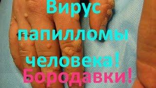 Вирус папилломы человека. Бородавки. Лечение!(, 2015-10-17T20:48:25.000Z)