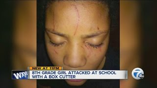 8th grade girl's face slashed with a box cutter