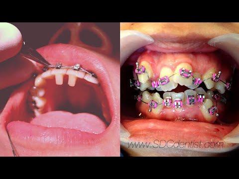 รู้ยัง? การทำงานของเหล็กจัดฟัน (Dental Braces)