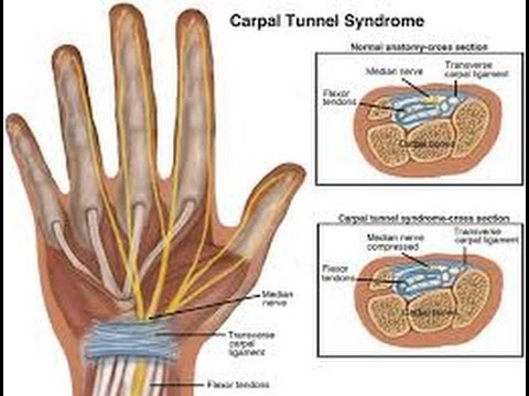 Carpal Tunnel Syndrome - YouTube