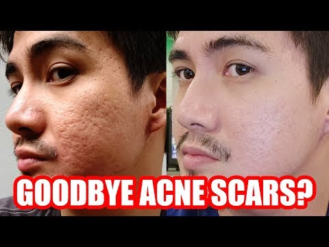 My Fractional CO2 Laser (Philippines) Experience - Acne Scar Removal [TAGALOG]