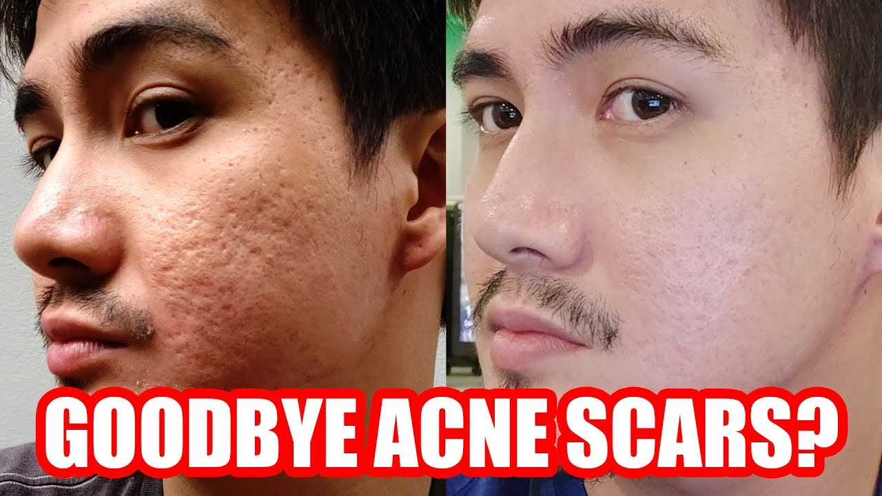 My Fractional Co2 Laser Philippines Experience Acne Scar Removal Tagalog Youtube