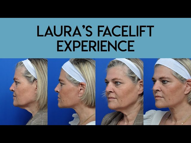 Laura's Facelift Experience