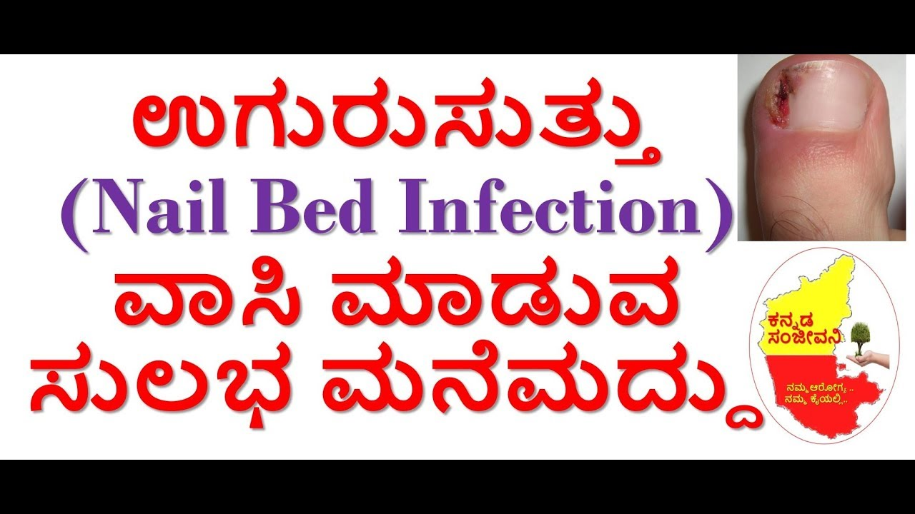 Home Remedies for Uguru Suttu in Kannada | Whitlow | Nail Bed Infection |  Kannada Sanjeevani